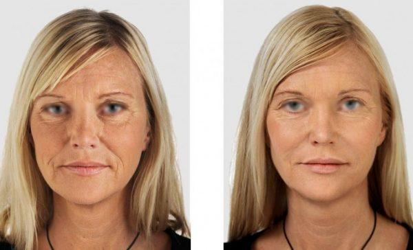 Пластическая хирургия: фото до и после операции