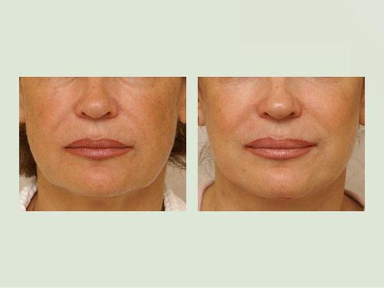Женщина до и после подтяжки нижней трети лица
