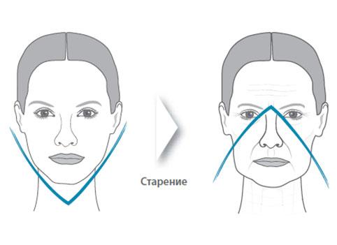 Лицо женщины без носогубных складок и с ними в результате старения