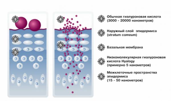 Проникновение гиалуроновой кислоты в кожу