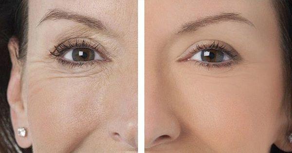 До и после курса радиочастотного лифтинга в зоне вокруг глаз