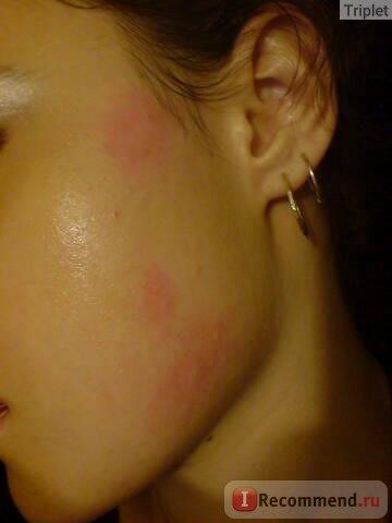 Раздражения на коже
