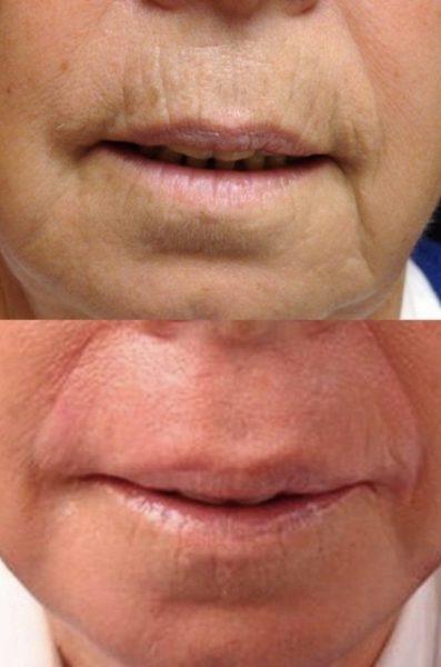Результат фенолового пилинга на области вокруг губ