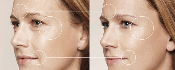 Результат применения масок от морщин