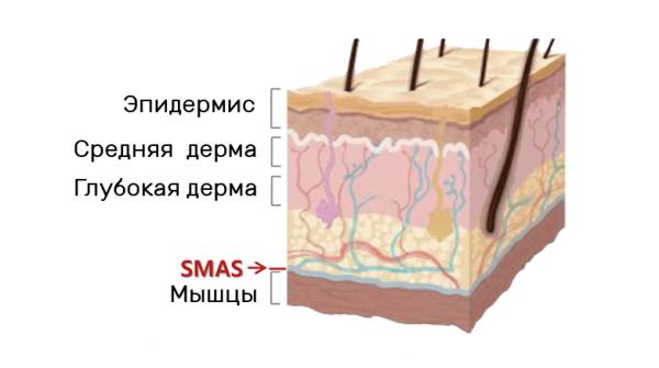 Косметология лифтинг лица