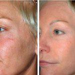 Женщина до и после процедуры фотоомоложения