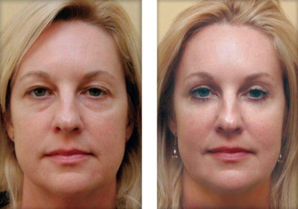 Состояние кожи ДО и ПОСЛЕ применения Регецина