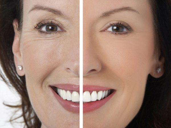 Уменьшение носогубных морщин и морщин вокруг глаз, улучшение цвета лица и текстуры кожи