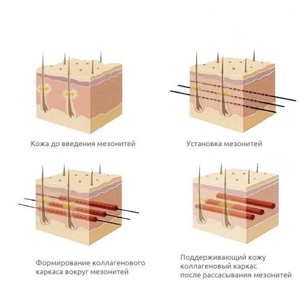 Принцип армирования кожи мезонитями