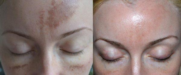 Фотоомоложение от пигментных пятен (фото до и после)