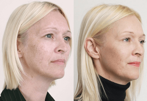 фото до и после применения химического пилинга