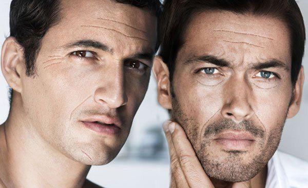 кожа мужчины с дефицитом влаги
