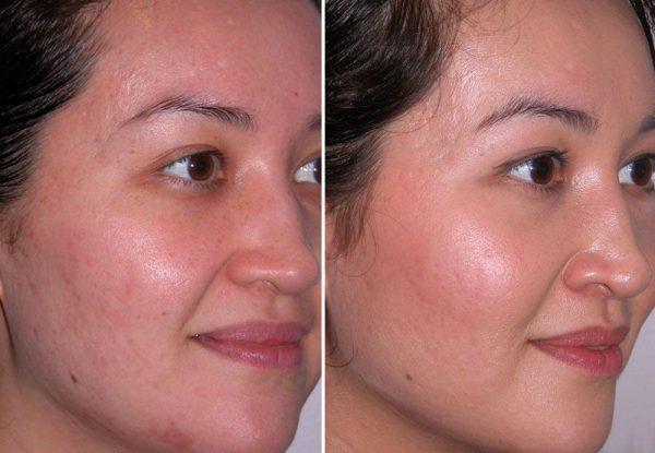 фото до и после курса микродермабразии
