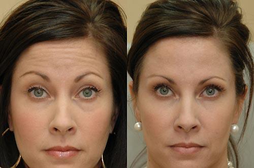 фото до и после инъекций ботулотоксина