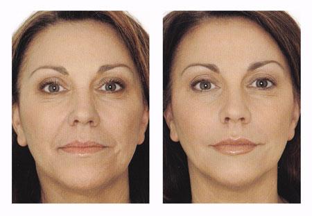 фото до и после процедуры термажа