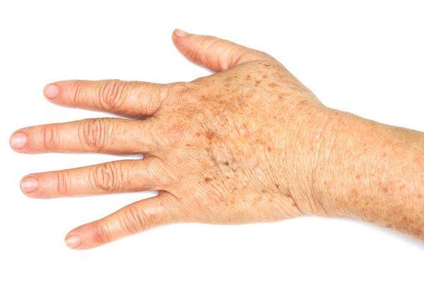 a-58-600x400 Восстанавливающий крем для рук – подбор лучших средств