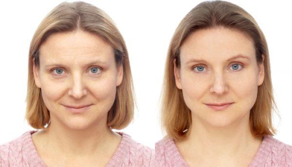 Женщина до и после лифтинга