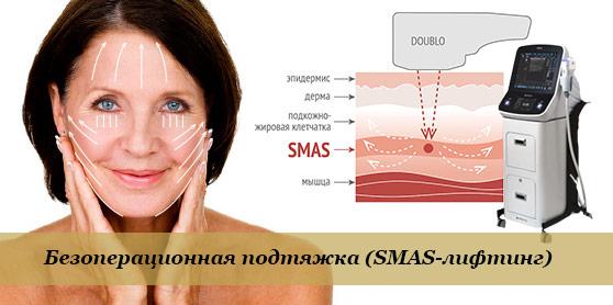 Действие SMAS-лифтинга