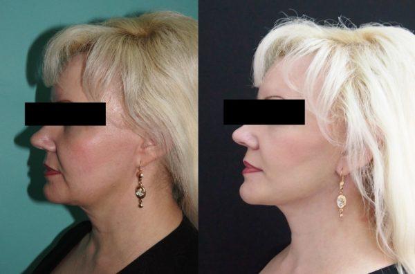 Женщина до и после ирургической подтяжки шеи