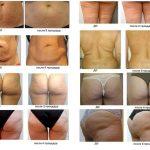 Изменения кожи тела после процедур RF-лифтинга