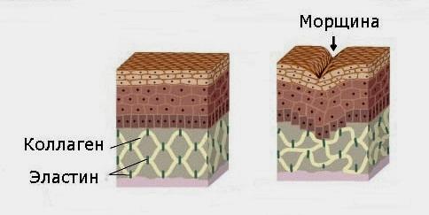 Коллаген и эластин в процессе образования морщин