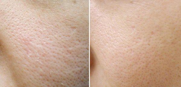 Мумие в крем для лица отзывы фото