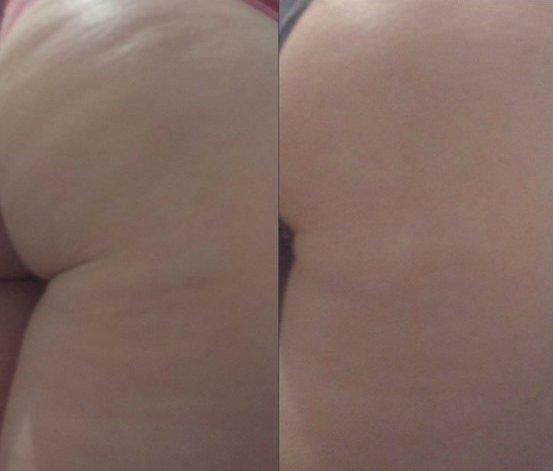 Кожа девушки до и после регулярных обёртываний