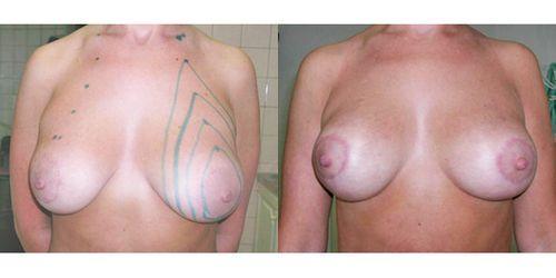 Лифтинг груди нитями: до и после