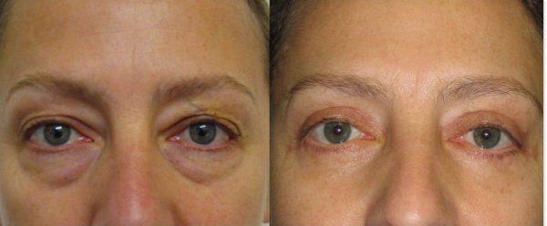 Фото до и после применения блефарогеля