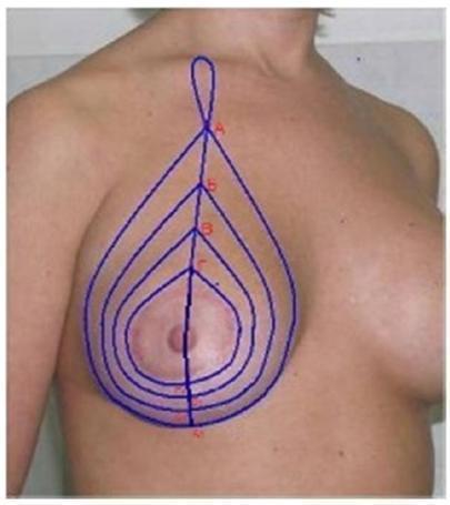 Разметка перед лифтингом груди