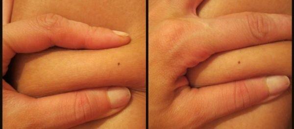 Складка на коже девушки до и после использования жиросжигающего крема от Турбослим