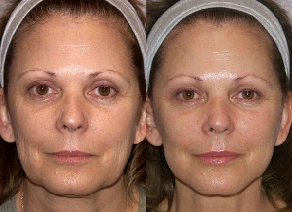Лицо женщины до и после лифтинга