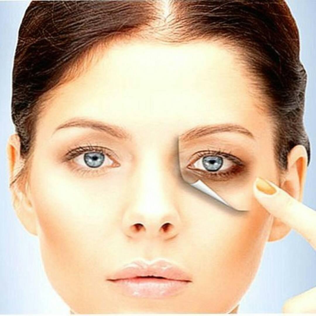 Как избавиться от отеков под глазами: причины и лечение 5