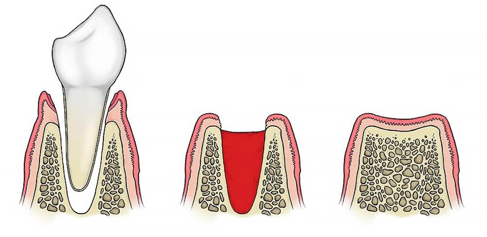 Уход за десной после удаления зуба мудрости