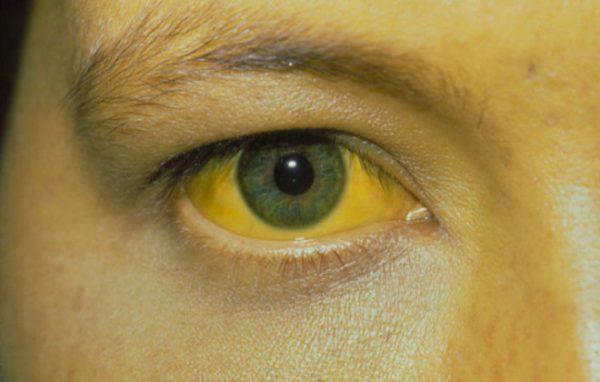 Жёлтые круги под глазами