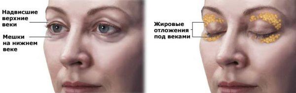Схема расположения жира вокруг глаз