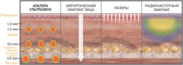 Глубина воздействия при проведении различных косметологических процедур