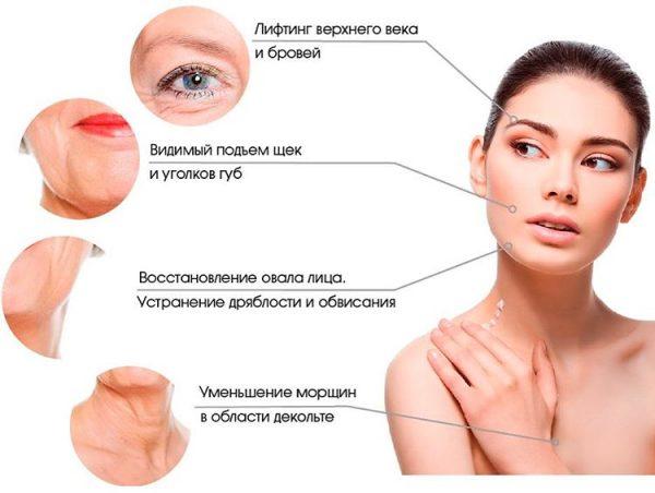 Эффект от ультразвуковой подтяжки лица