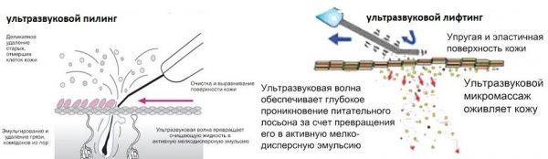 Сравнение процедур ультразвукового пилинга и ультразвукового лифтинга