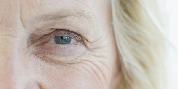 Глубокие морщины вокруг глаза