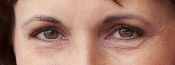 Глубокие морщины вокруг глаз женщины