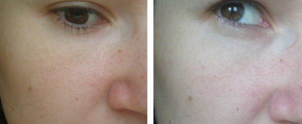 Кожа до и после ежелневного использования персикового масла