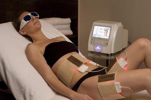 Девушка на процедуре лазерного липолиза