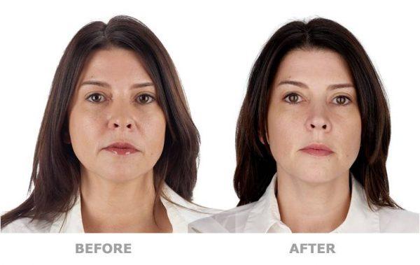 Лицо женщины до и после плазмолифтинга