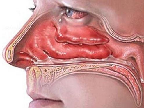 воспалённая слизистая носа