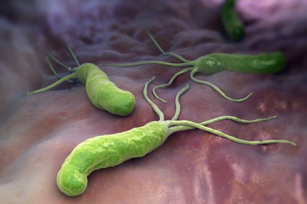 Helicobacter Pilori