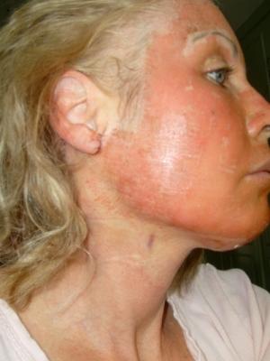 Лицо девушки с покраснением после лазерного омоложения