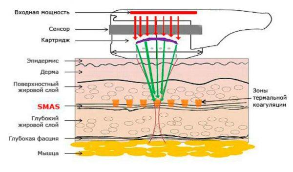 Принцип действия аппарата для ультразвукового лифтинга