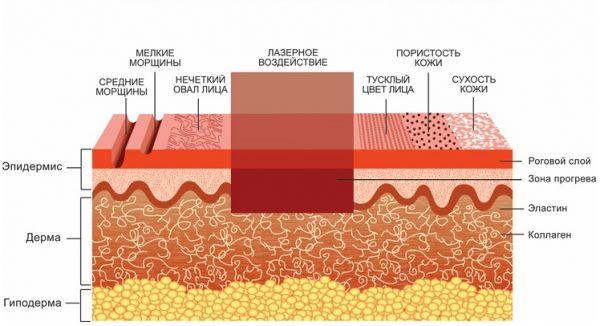 Схема лазерного воздействия при smooth-омоложении