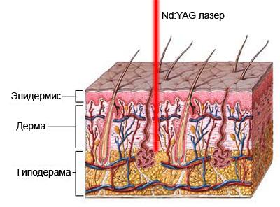 Схема воздействия неодимового лазера на кожу